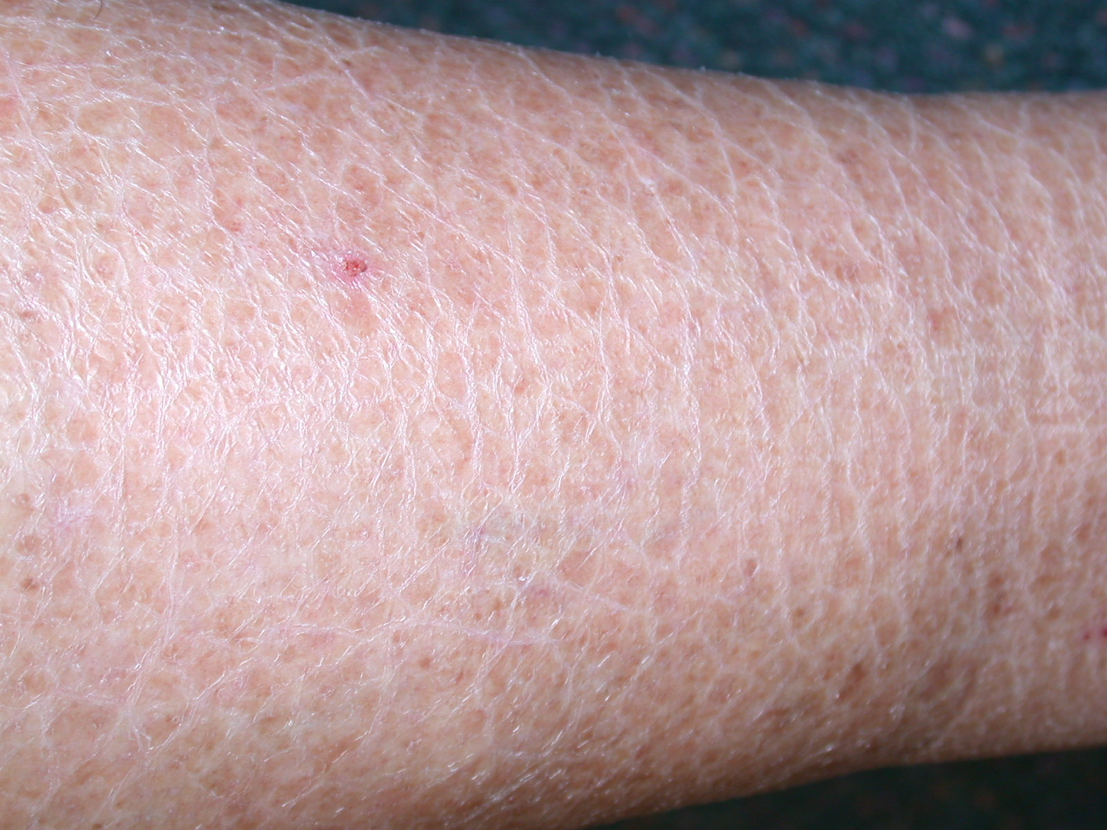 Image gallery ichthyosis vulgaris for Fish scale disease
