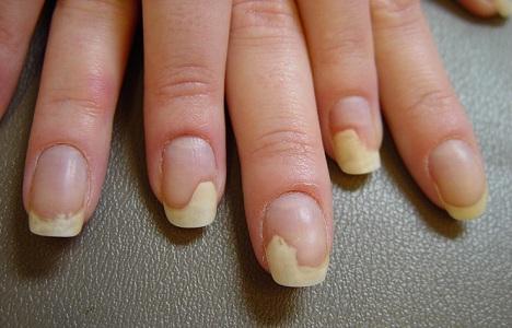 Nails Separating From Nail Beds